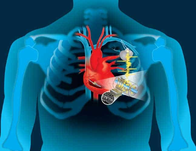 Medical Devices With A Human Heartbeat